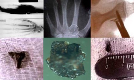 Doctor of Podiatric Medicine Explains  Extracting Alien Objects Found Inside People At A Hearing on UFOs – Collective Evolution